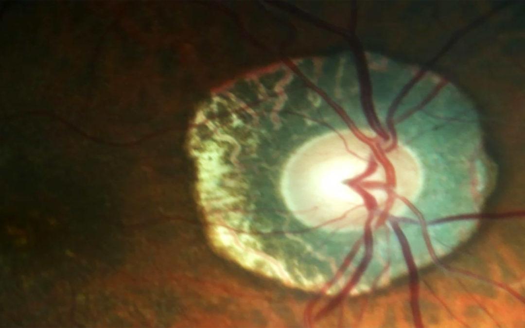 Actualidades en estudios funcionales para Glaucoma